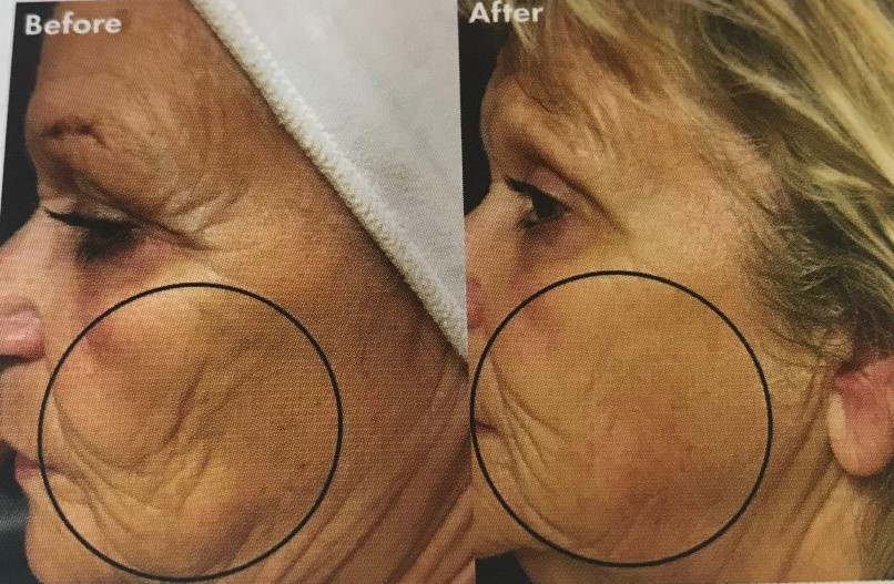 Non-Surgical Face and Body Lift Treatment