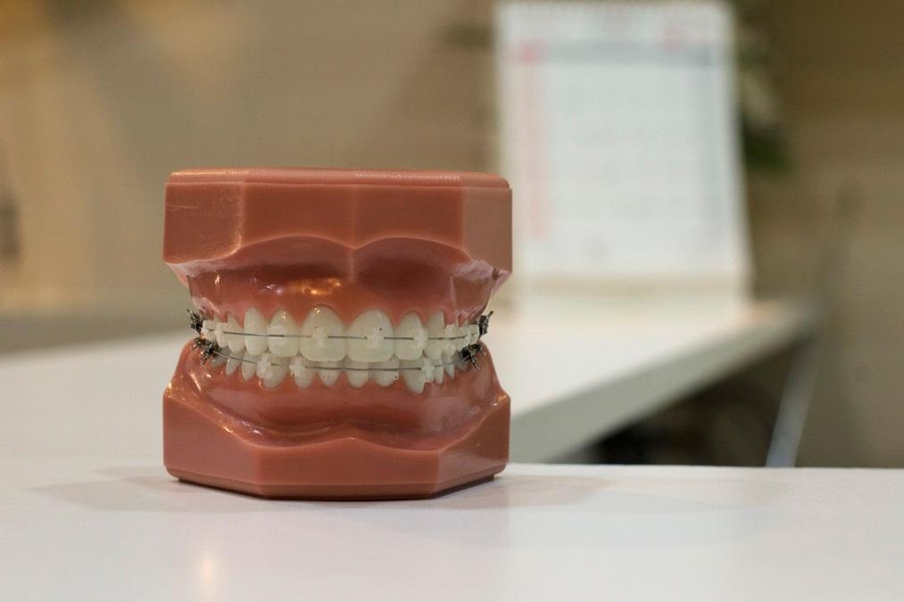 model+with+braces.jpg