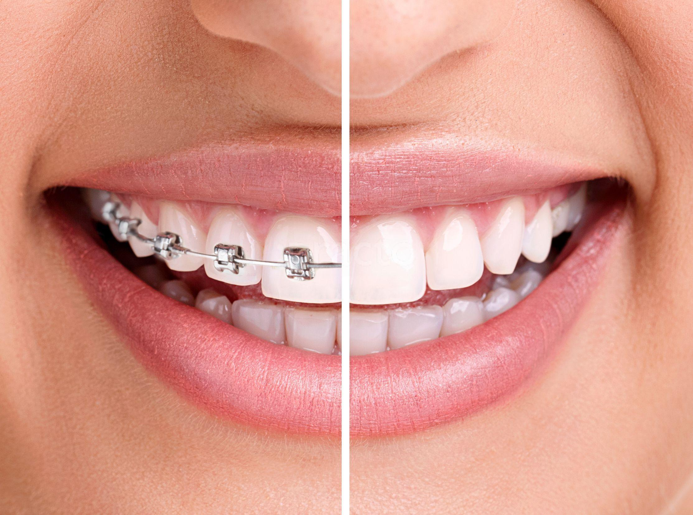 smile-architect-dental-clinic-bangalore-1483533669-586ced652e0e3.jpg