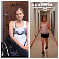 Patient on Day 1 and at Day 24 of treatment.