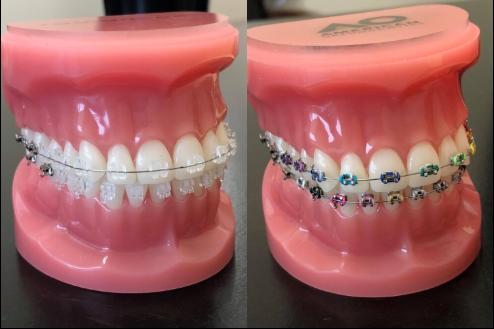 ceram vs braces.png