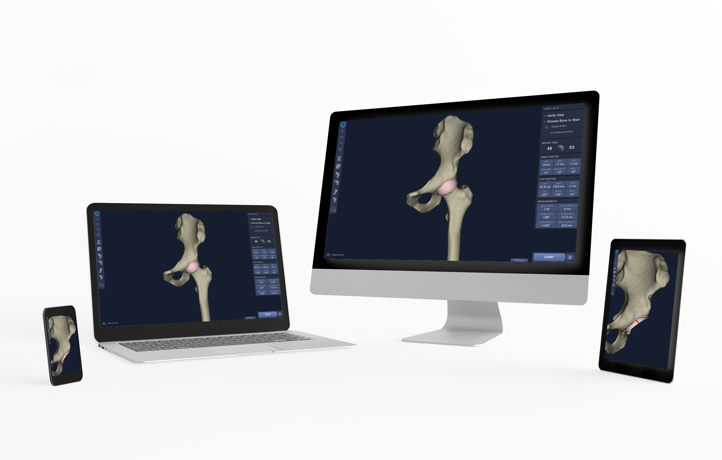 Better software - Our surgical planning tools allows surgeons to make up-front decisions about implant size and position, so they can focus on the patient during surgery.read more