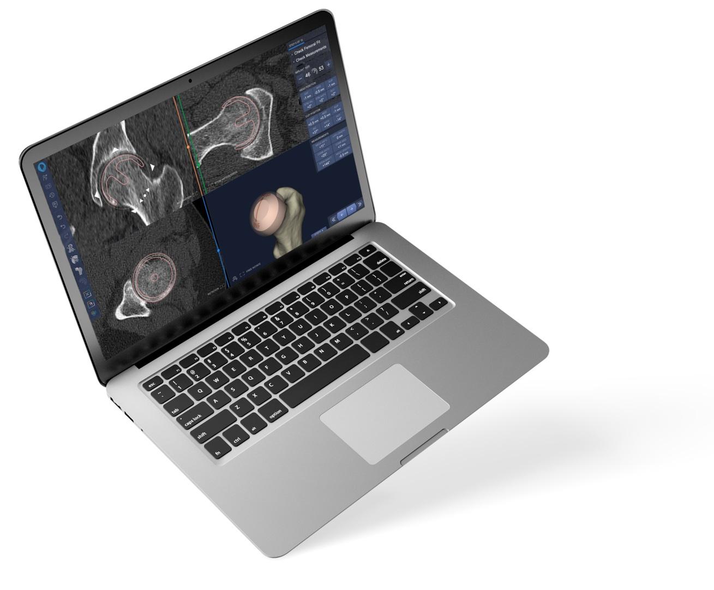 Floating+laptop+white+bg+light+shadow.jpg