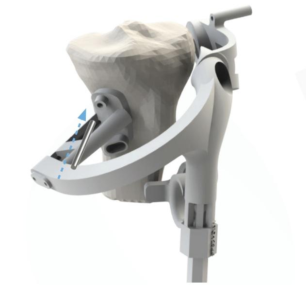 Embody+3D+Printed+Guide+High+Tibial+Osteotomy.jpg