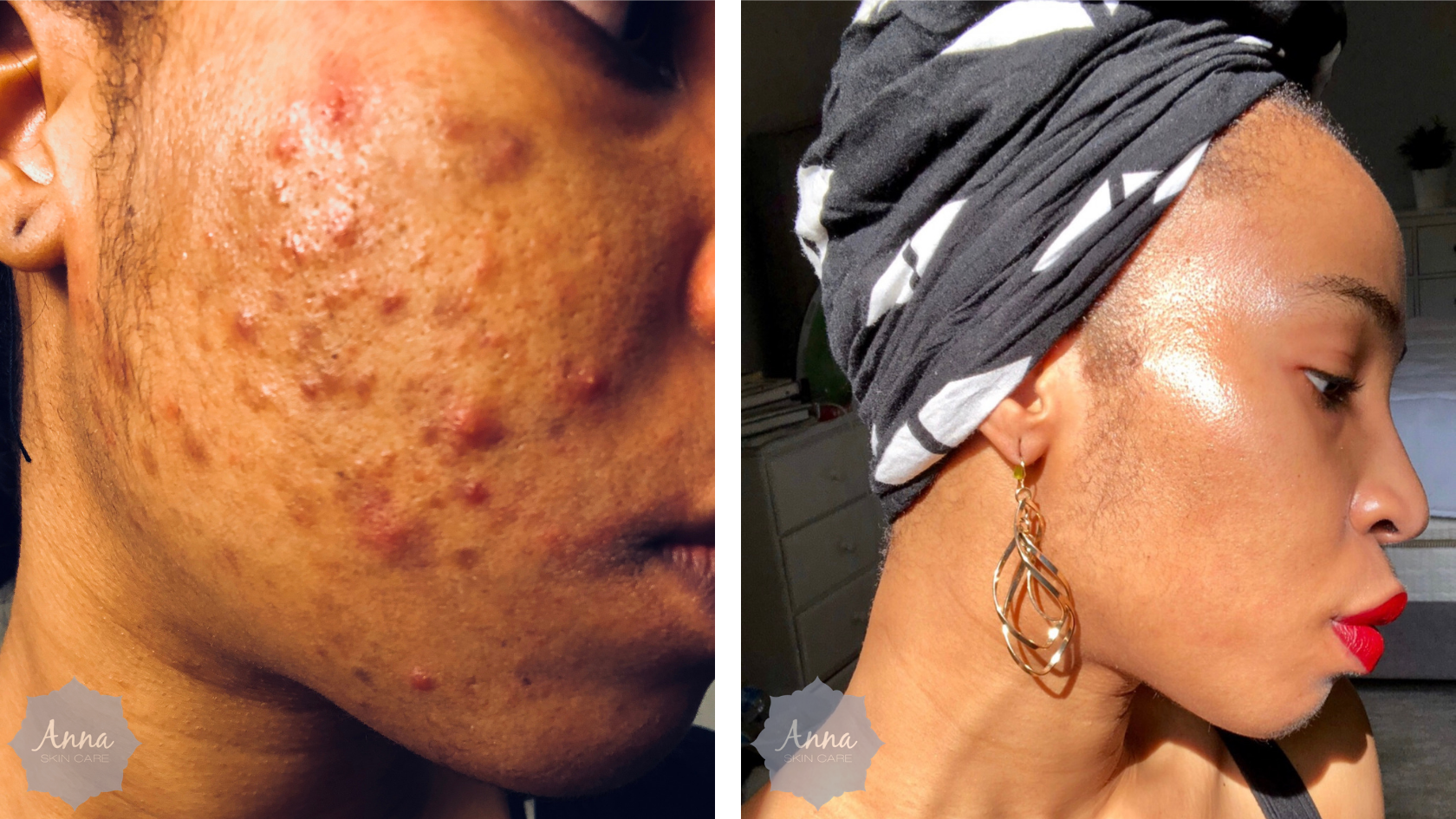 Anna Skincare Clear Skin Anti-Acne Program in Pittsburgh (1).png
