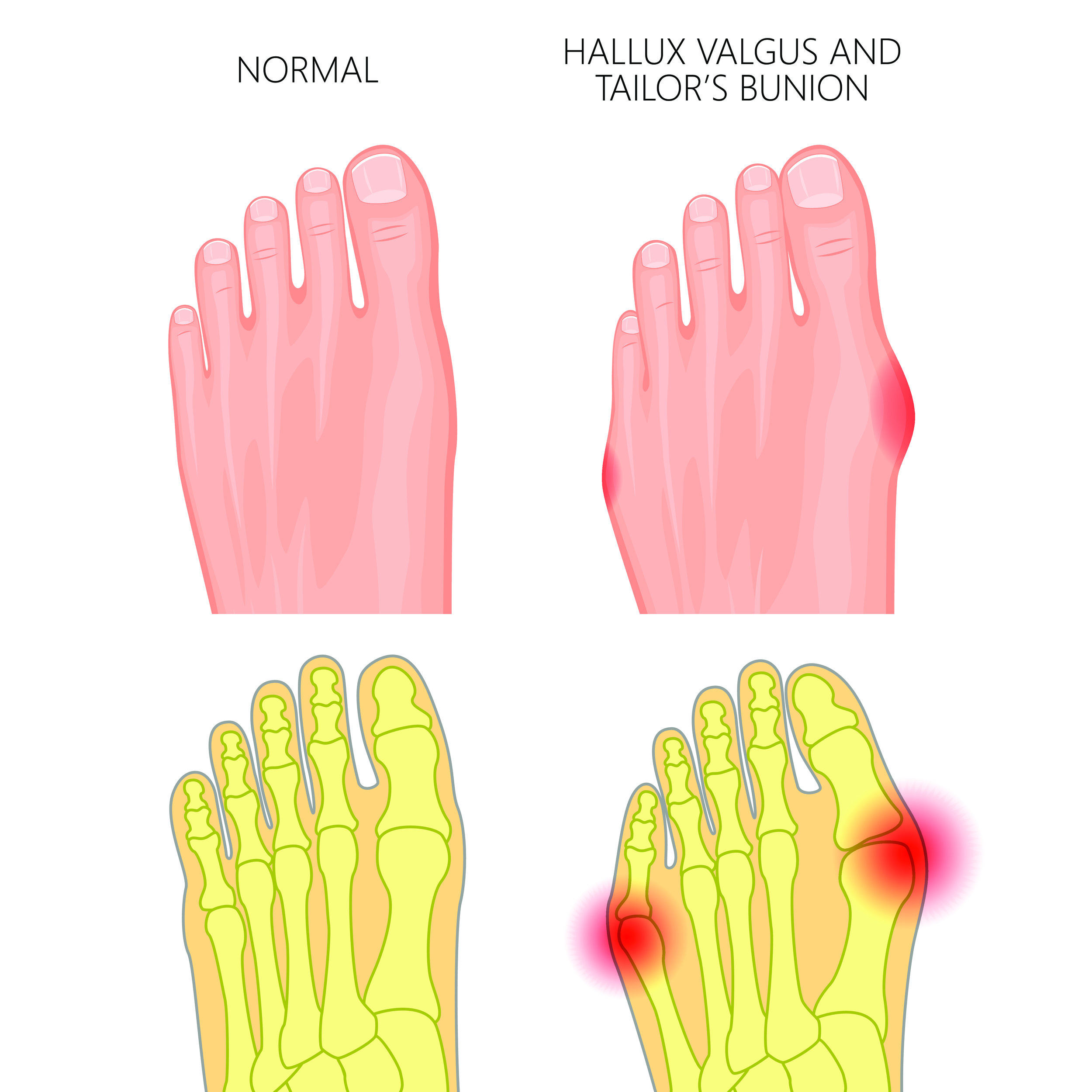 Mahwah, NJ podiatrist treats bunions, bunion correction surgery