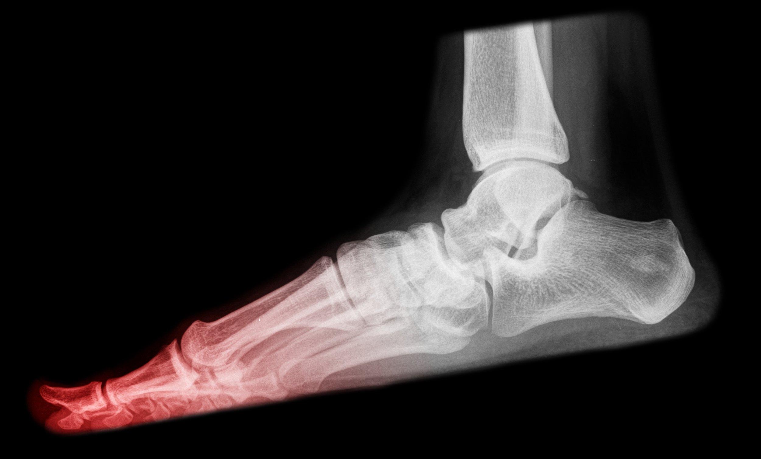 mahwah foot doctor treats foot fractures, broken ankles, broken toes