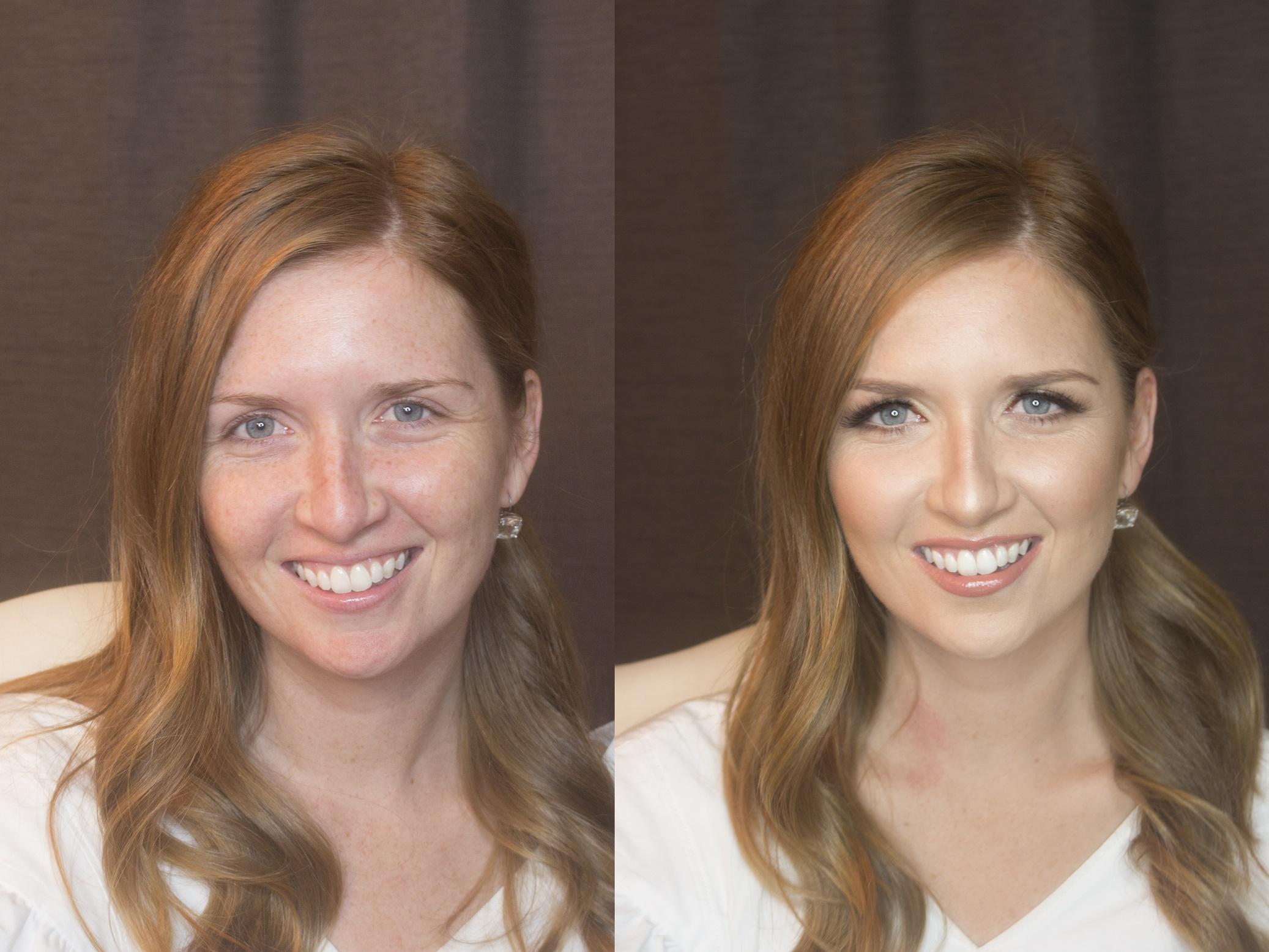 before&afterKara (2).jpg