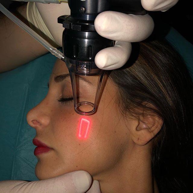 #laserskinrejuvenation #laserskinresurfacing #laserfacial  Alternative #faltenunterspritzung #botox