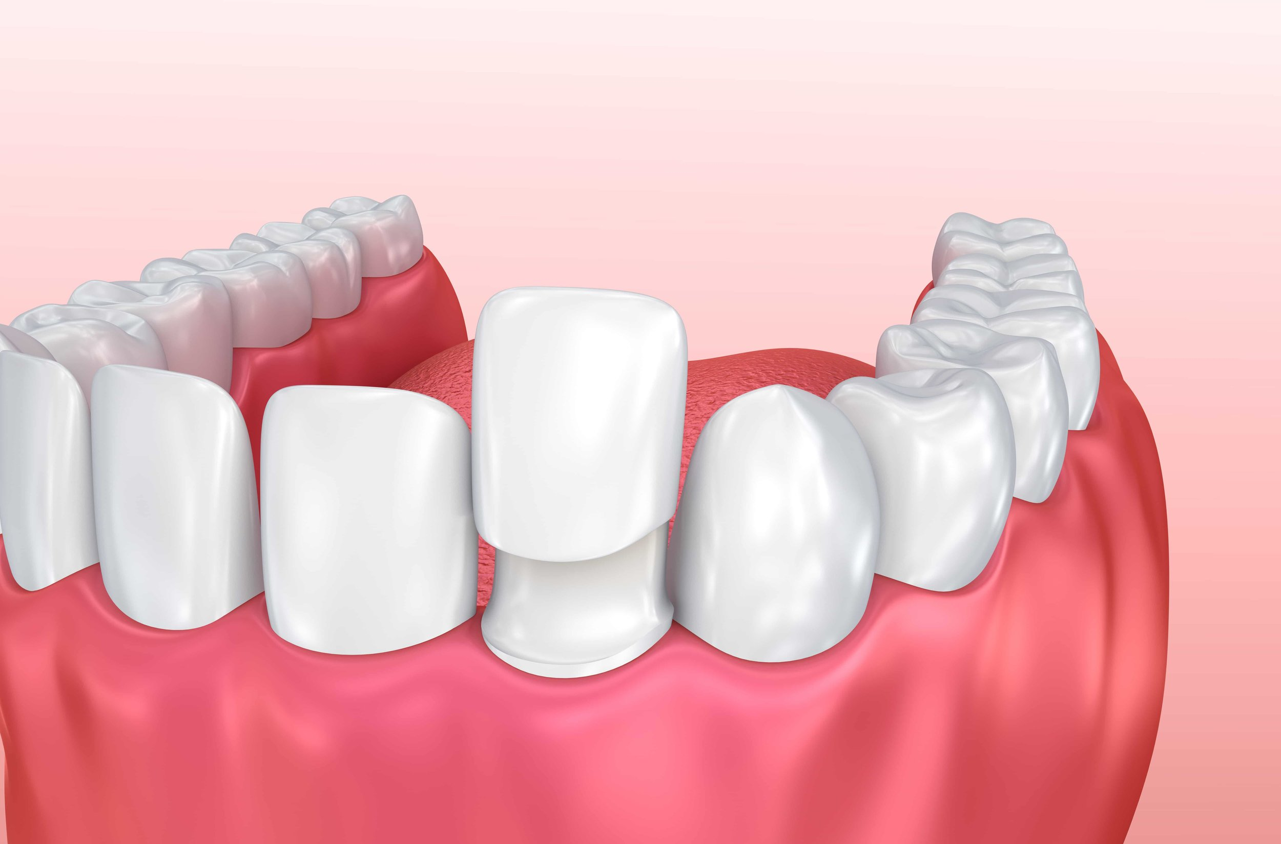 Veneers are thin layers of restorative materials that are bonded to the surface of the teeth to protect the damaged teeth or improve its appearance. It is used to treat different defects of the teeth such as chipped or worn teeth. They can also be used to restore the natural color of teeth that have been damaged because of stains. A veneer can also be used to cover large gaps between the teeth.   TYPES OF VENEERS  There are different types of veneers depending on the type of materials used to make them. The most popular is the porcelain one. Also called porcelain laminates, the thickness is around half a millimeter and is fixed on to the front of the teeth in order for you to have a beautiful outcome. This type of material mimics the teeth structure because it is hard. It also resists wear thus it can last for a long time.   Another type of veneer is the dental composite that is made from synthetic resins. This type of veneer is cheap, insoluble, and very easy to manipulate. It is also very tolerant to dehydration and is equally as beautiful as those made of porcelain.  CARING FOR YOUR VENEERS  Taking care of your veneers largely depends on how they are used or taken care of. Taking care of these dental structures require good oral hygiene. Aside from flossing, it is crucial to brush your teeth using a non-abrasive toothpaste that contains fluoride. This will help reduce the decay especially in the areas of the tooth or teeth that do not have veneers.   It is also important to avoid exposing them to too much pressure especially if you have porcelain veneers, as they are incapable of withstanding strong impacts. Make sure that you don't bite on hard objects or avoid clenching or grinding your teeth.