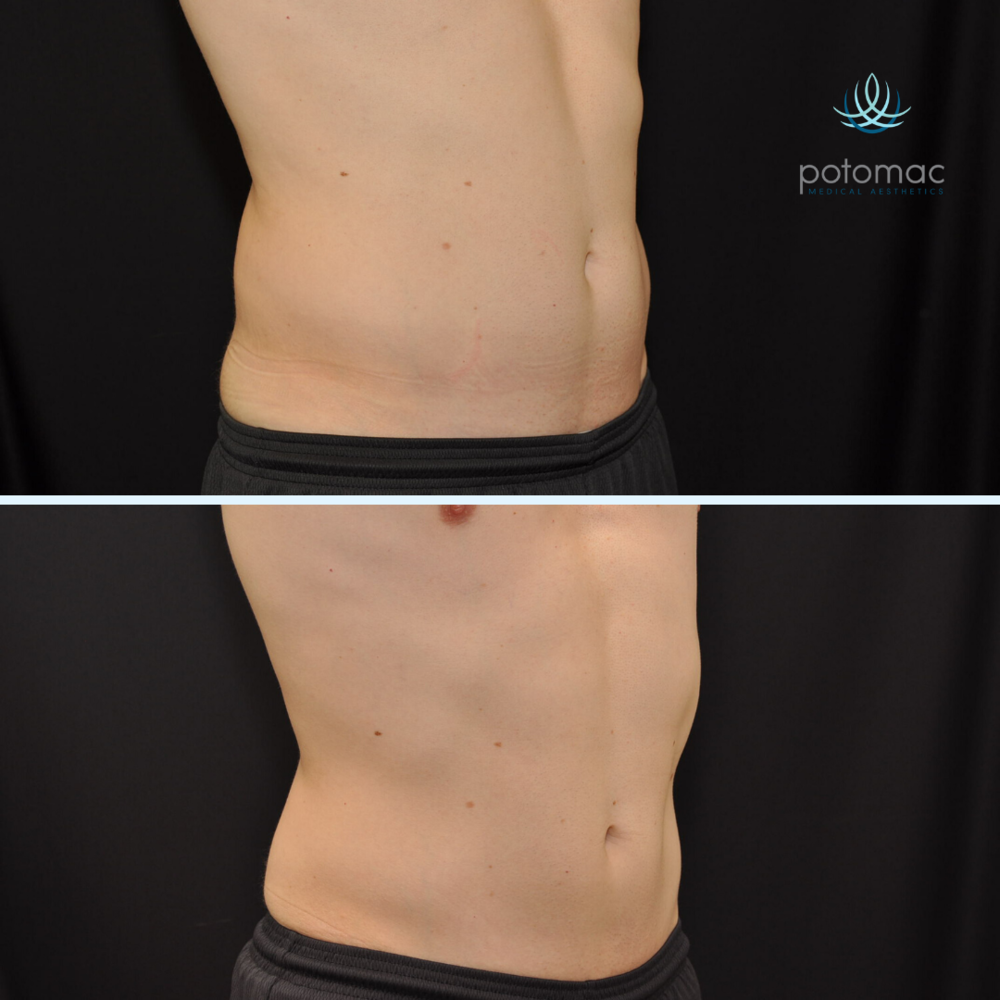 How We're Improving the CoolSculpting Experience with Z Wave ...