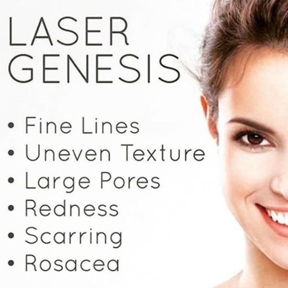 laser+genesis.jpg