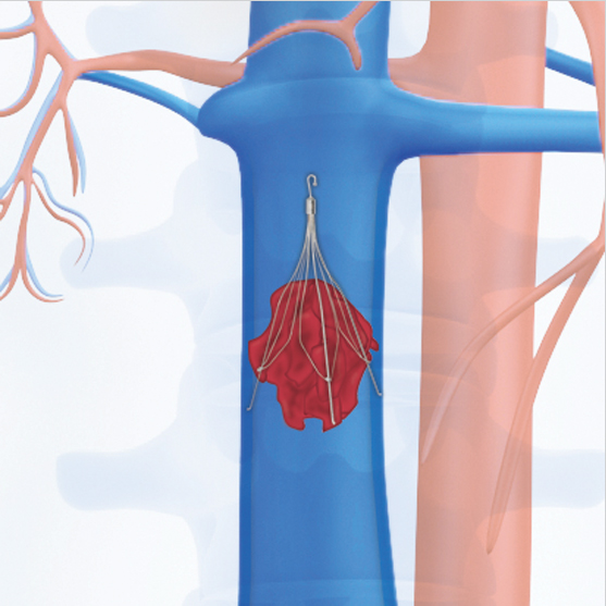 Medical Illustration of blood clot + filter