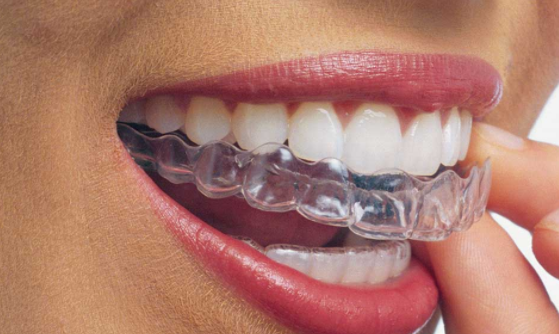 invisalign1.PNG