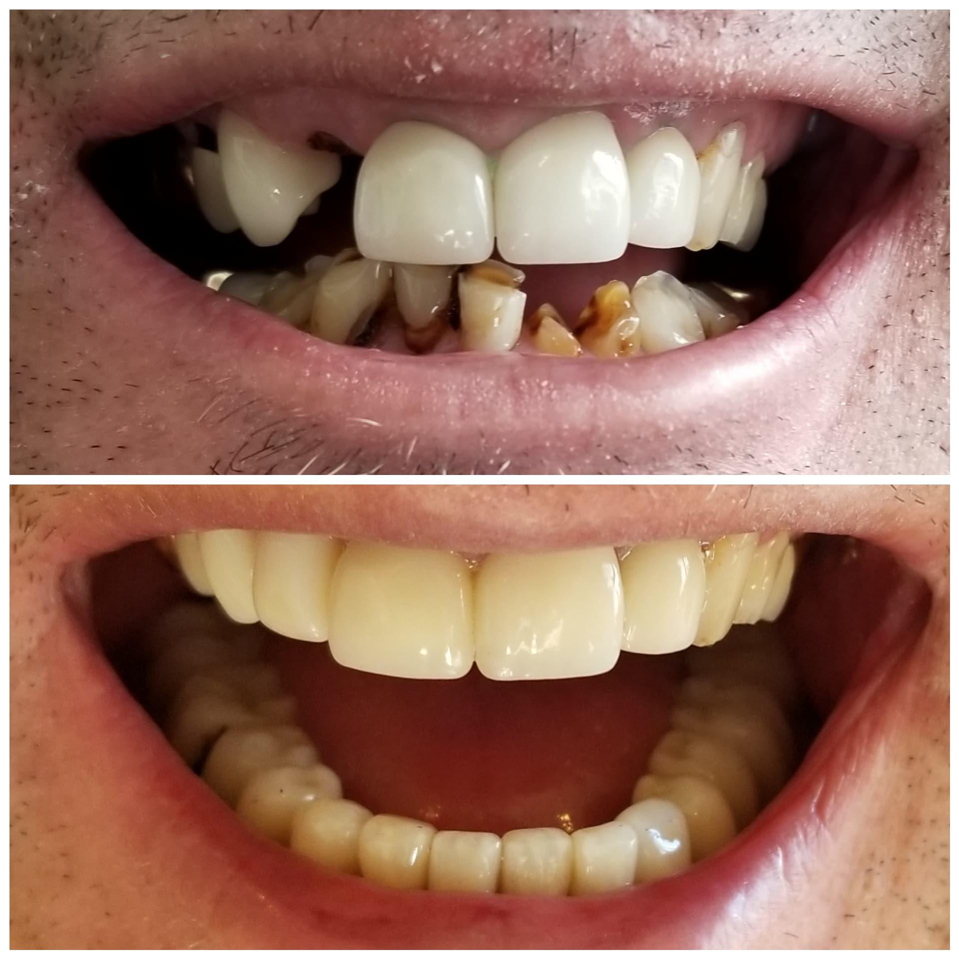 Full Mouth Rehab .jpg