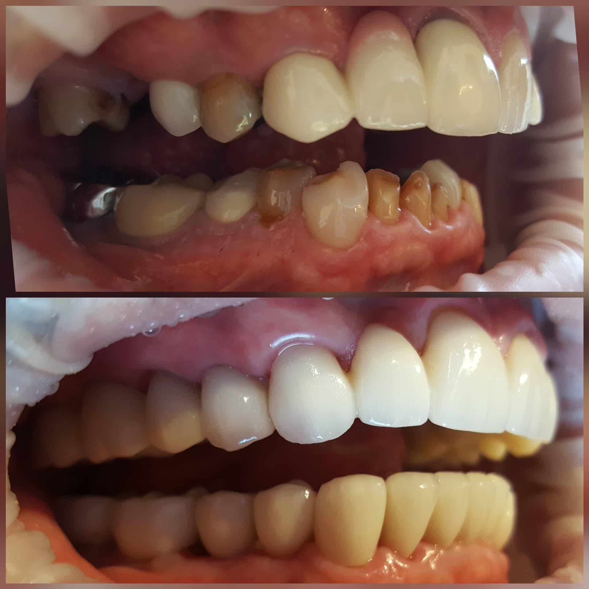 Full Mouth Rehab 2.jpg