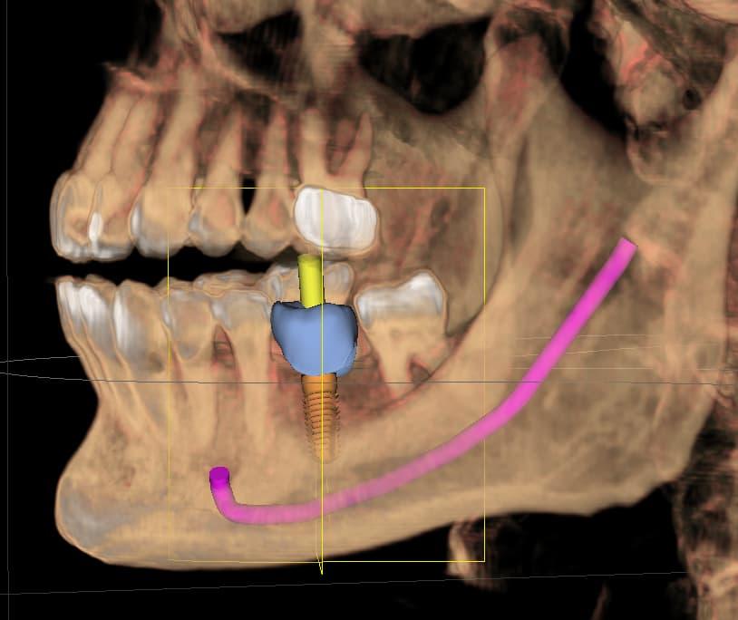 #19 implant.jpg
