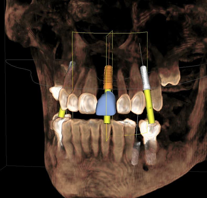 #8 implant.jpg