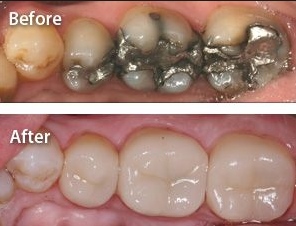 Cerec before and after posterior.PNG