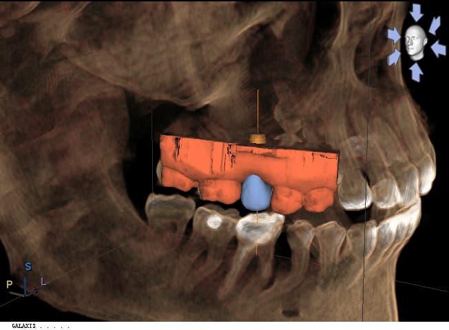 3d-implant.jpg