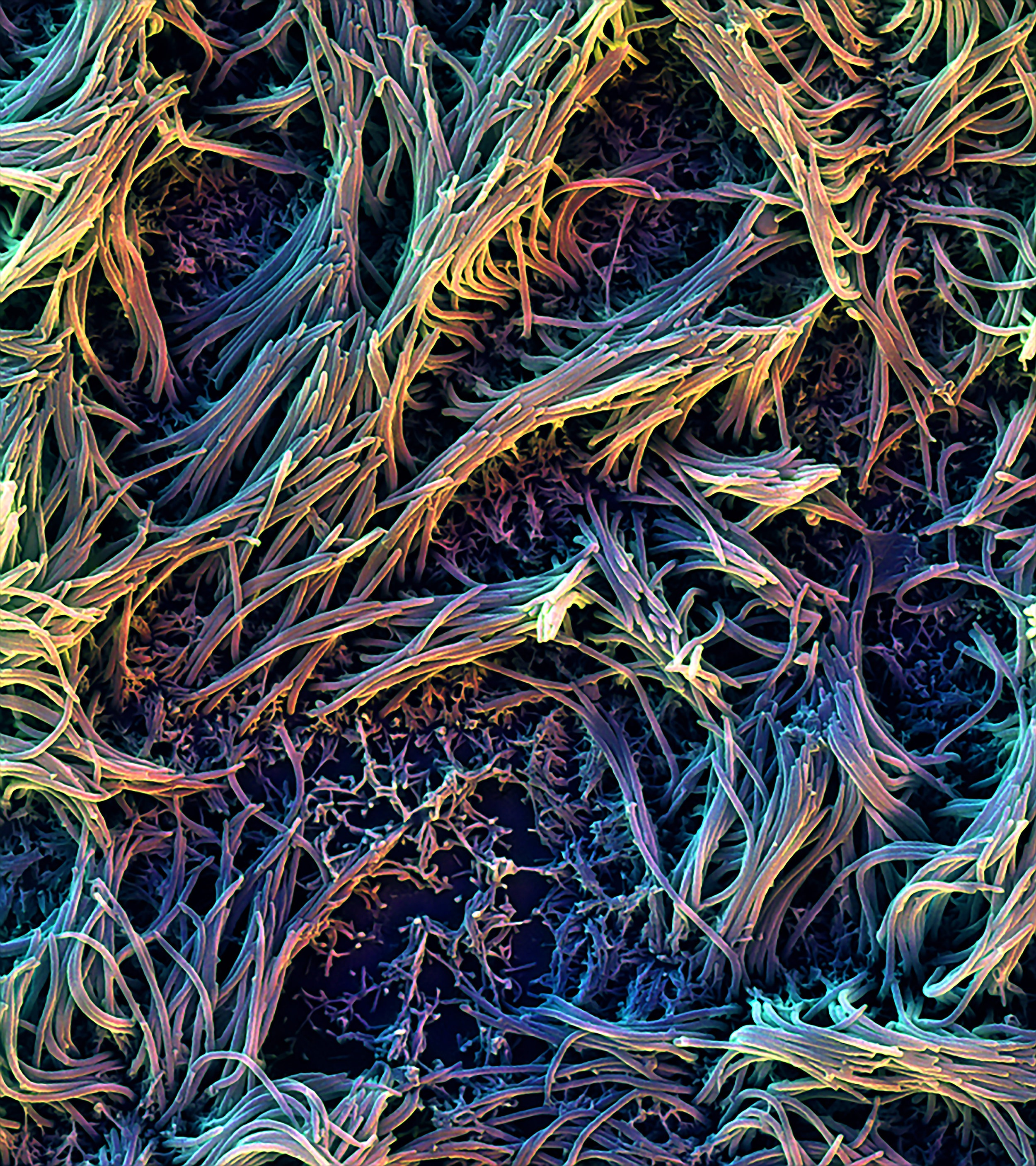 SEM image of ciliated cells in the Airway Lung-Chip