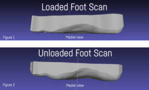 Figure 1 shows a foot scanned from a loaded position. Note the drop in the medial profiles. This is due to arch loading and soft tissue displacement. Figure 2 is an example of an unloaded scan. Note the higher medial arch profiles.