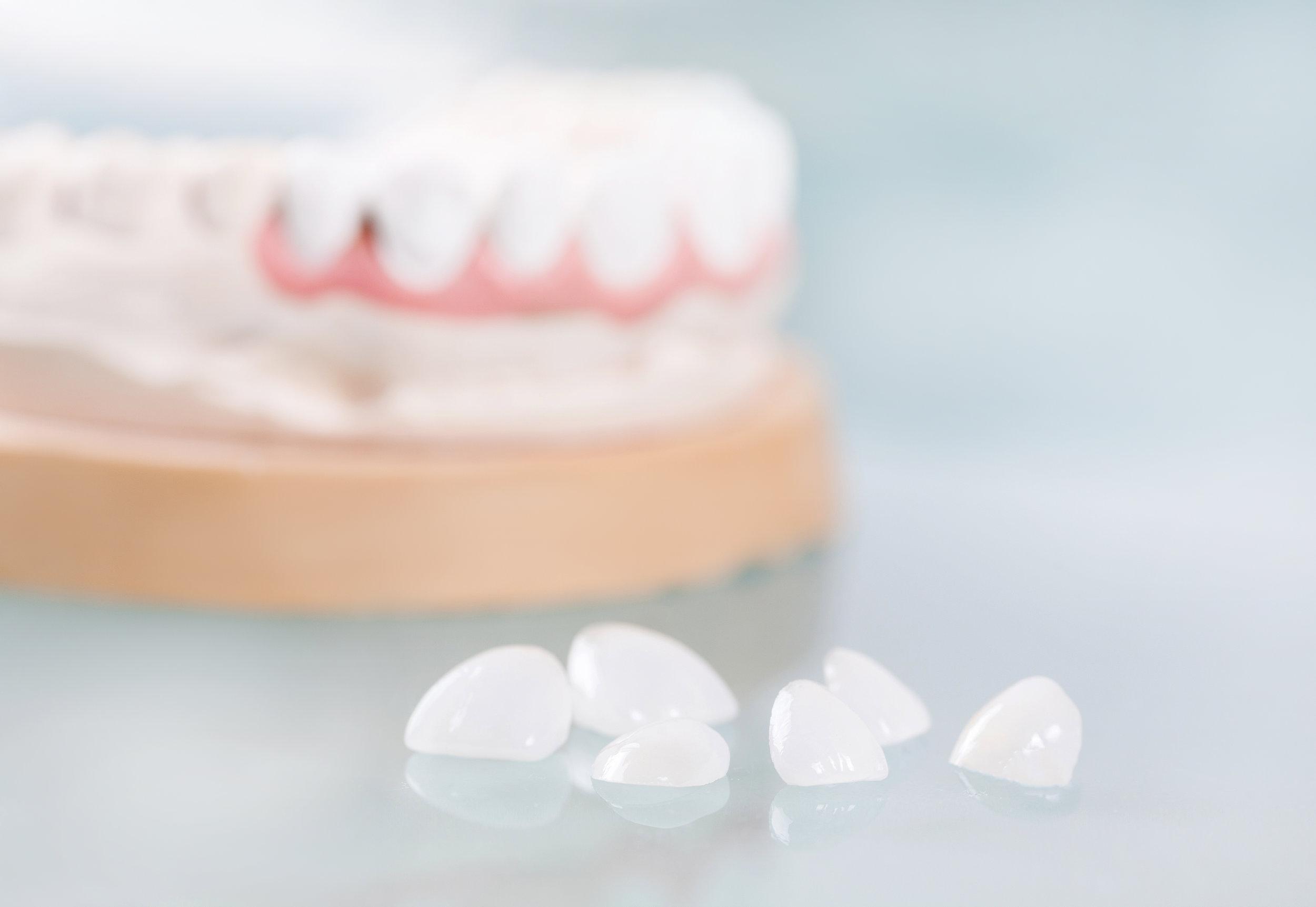 Porcelain Veneers - MAKING FLAWLESS SMILES POSSIBLE.