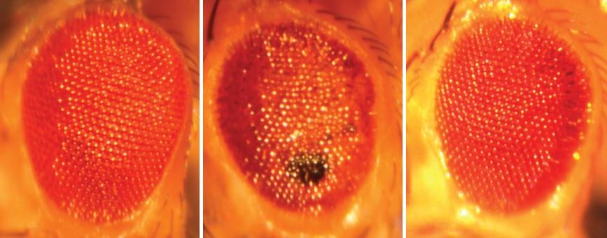 Left: A normal Drosophila eye; Middle: A c9ALS/FTD Drosophila eye; Right: An eye of a c9ALS/FTD fly expressing a genetic suppressor of neurodegeneration.