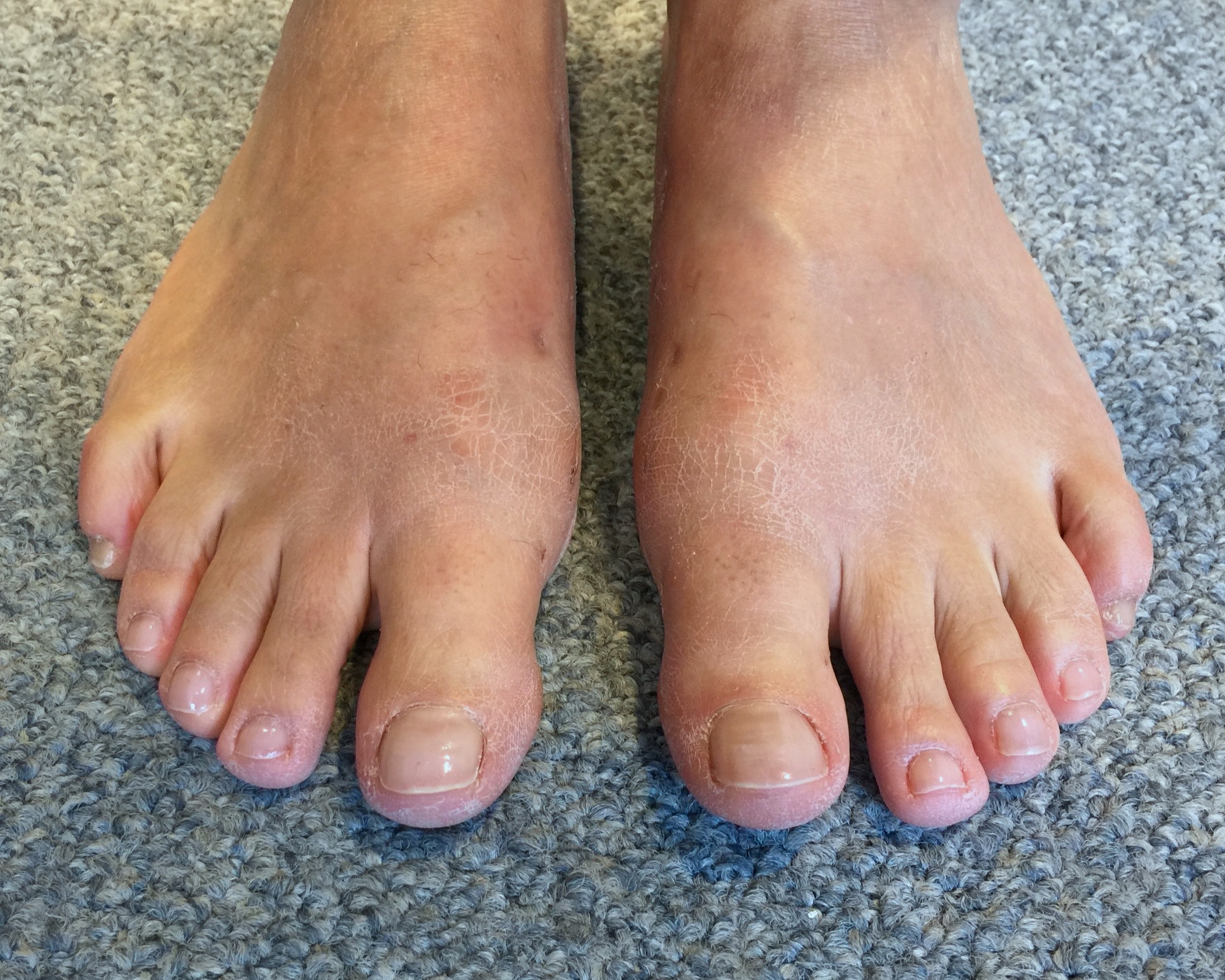 Case 4: Six weeks after MICA (ProStep)