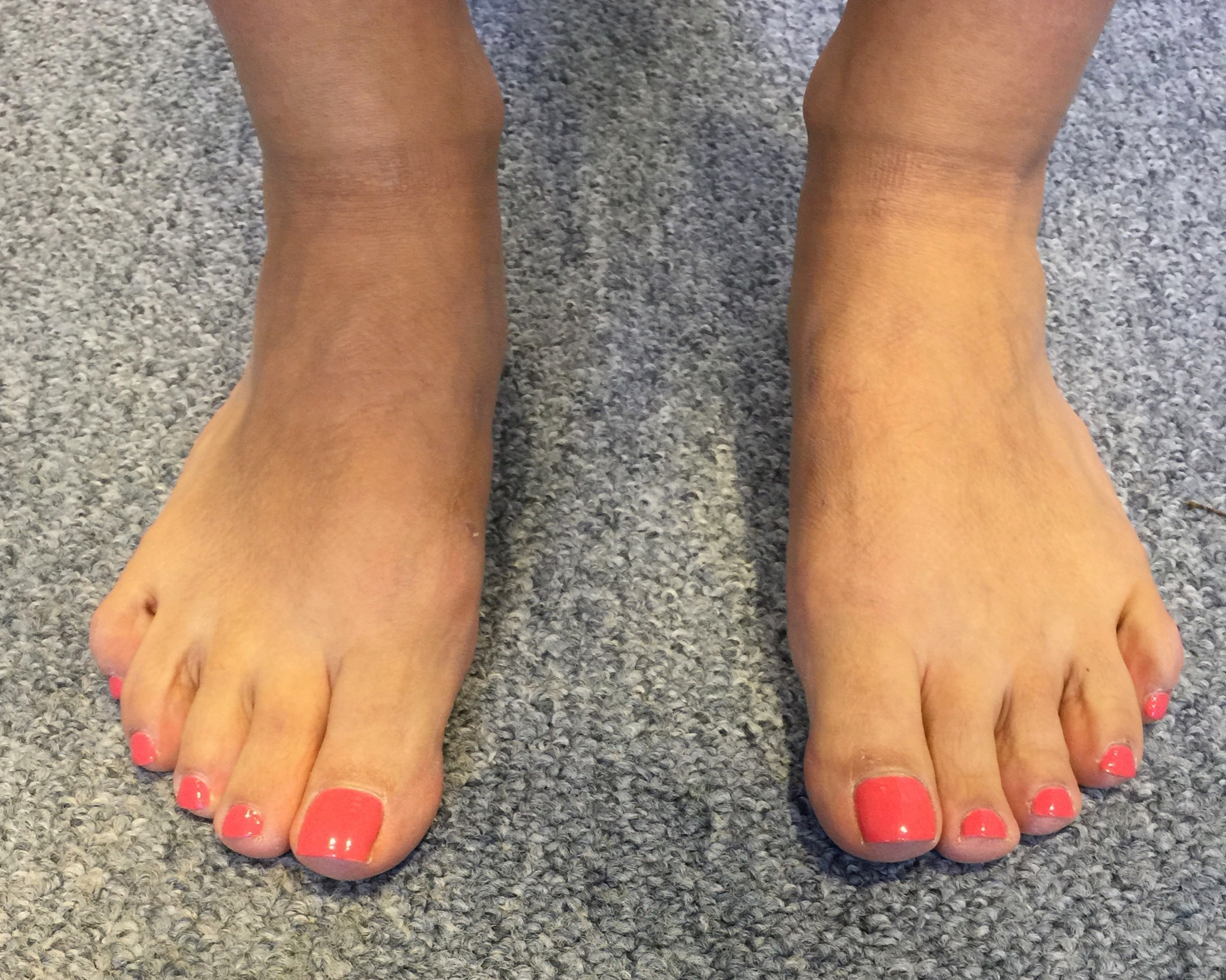 Case 6: Six months after MICA (ProStep)
