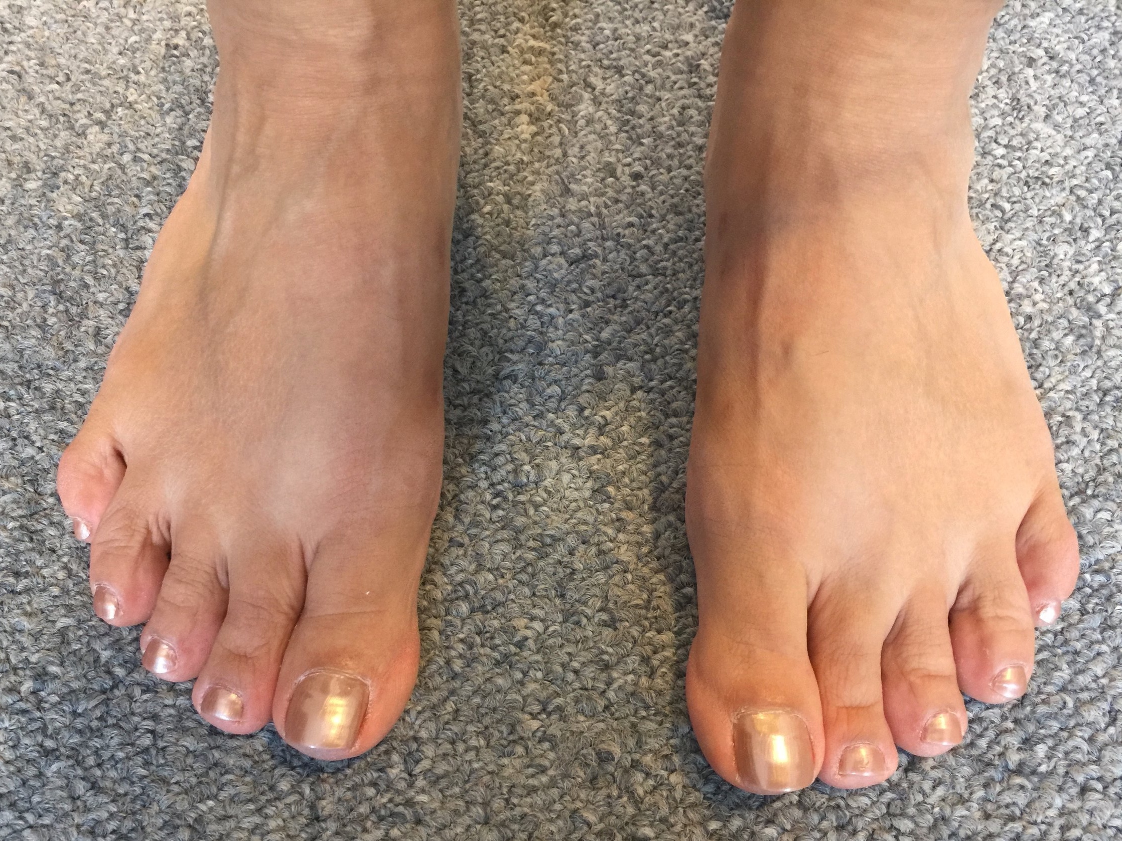 Case 7: Six months after MICA (ProStep)
