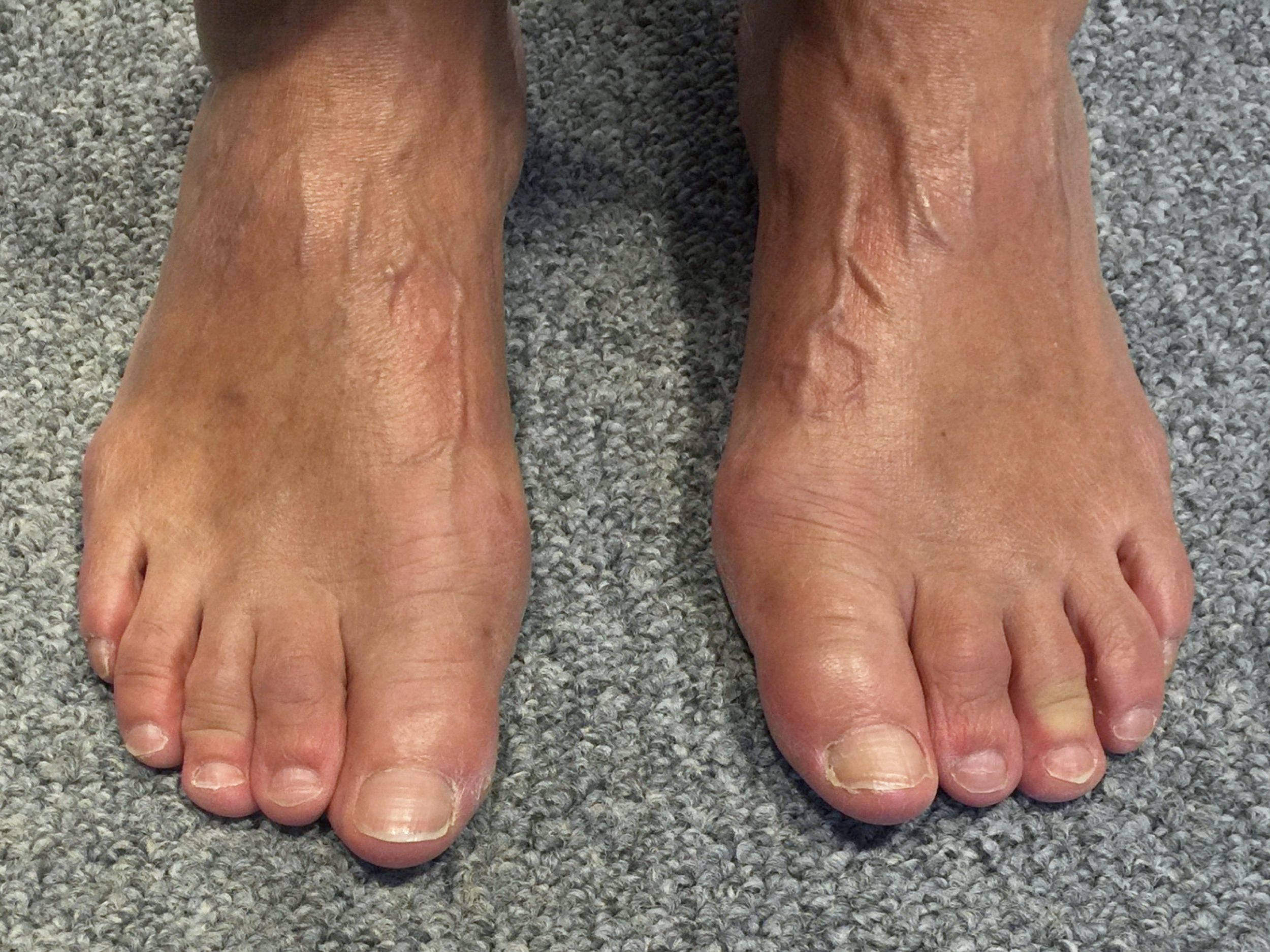 Case 8: 5 months after MICA (ProStep)