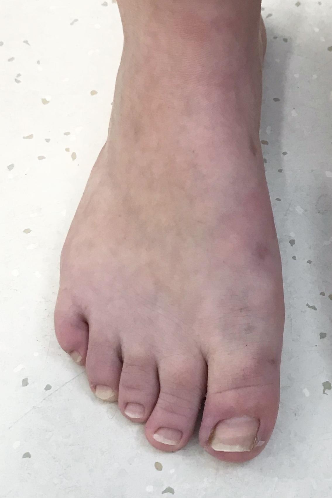 Case 11:  Six months after MICA (ProStep) surgery