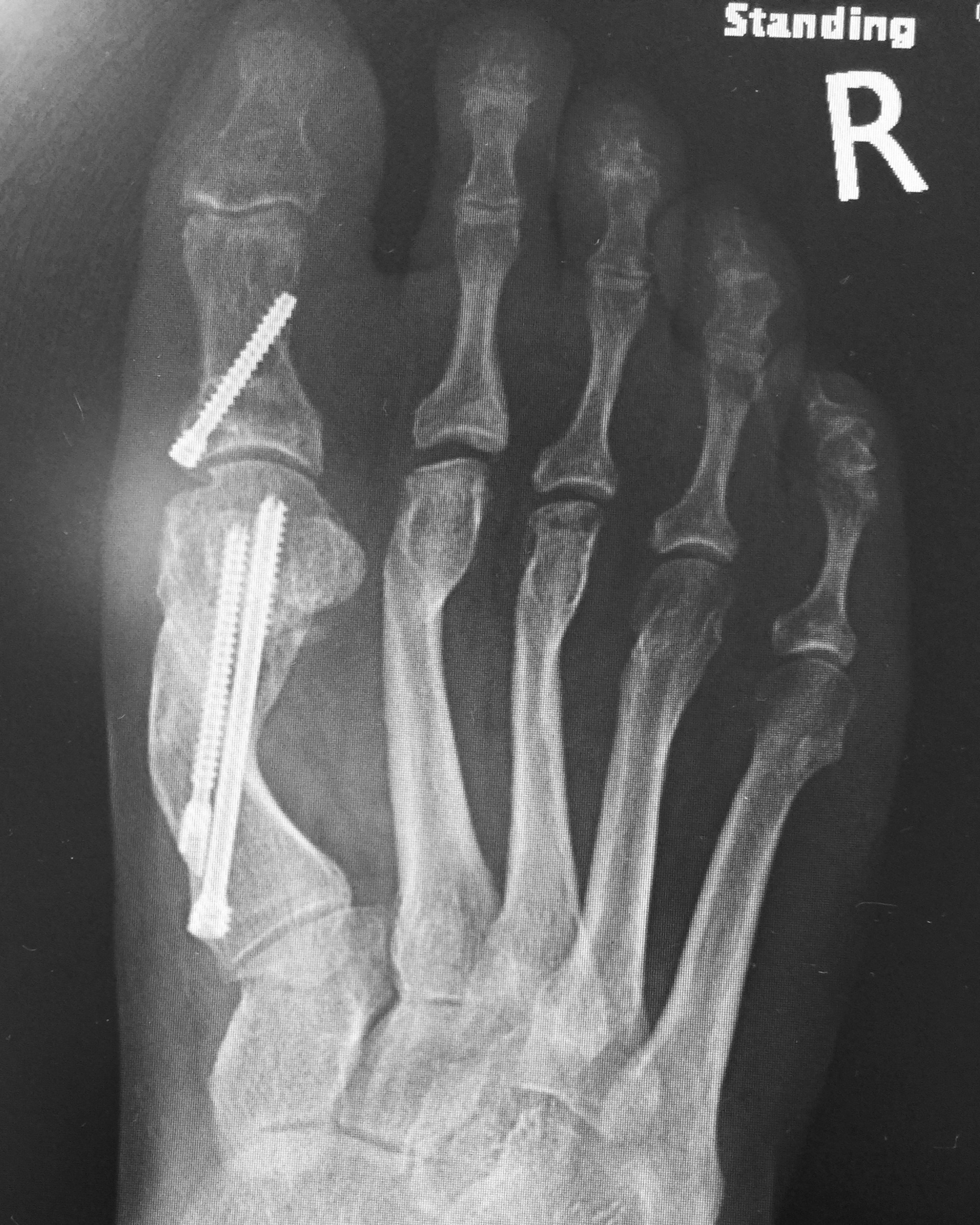 Case 9: After MICA (ProStep) surgery