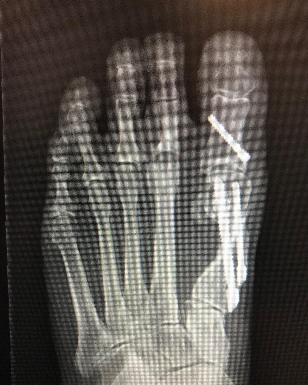 Case 2: After MICA (ProStep)