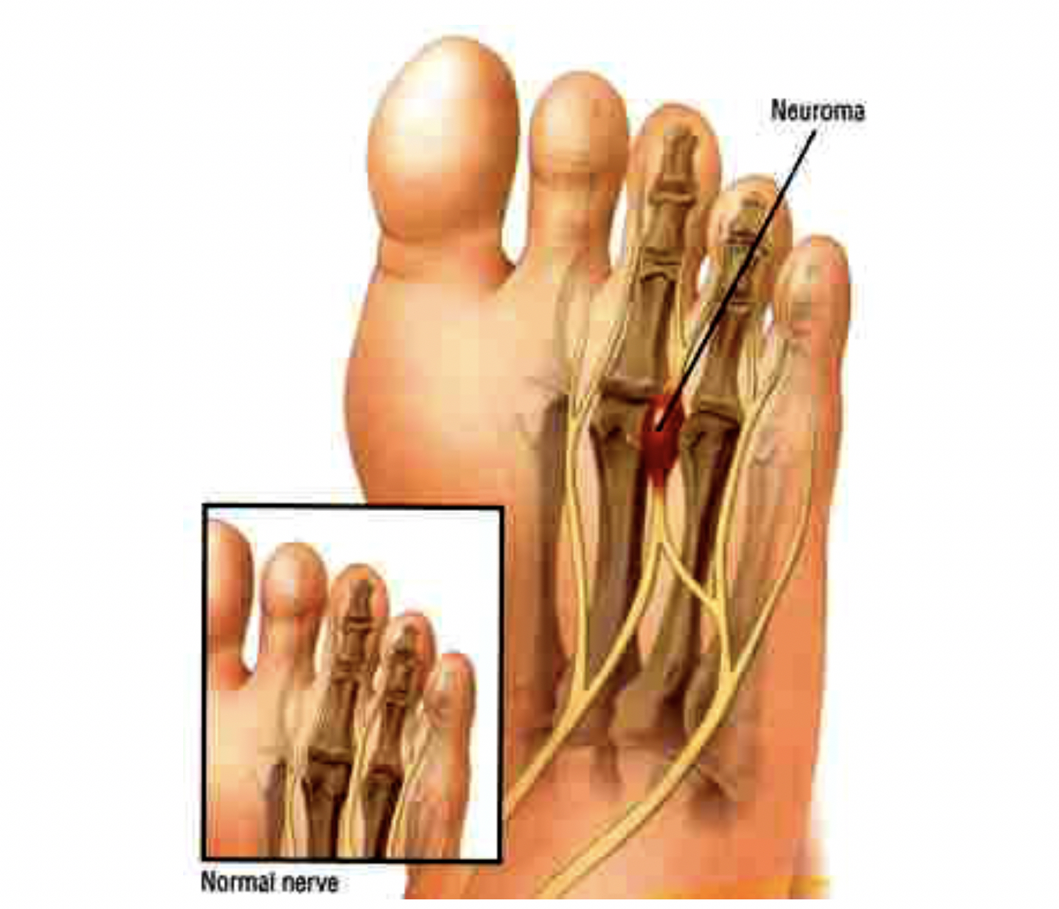 Morton's neuroma is a thickening of one of the sensory nerves in the forefoot