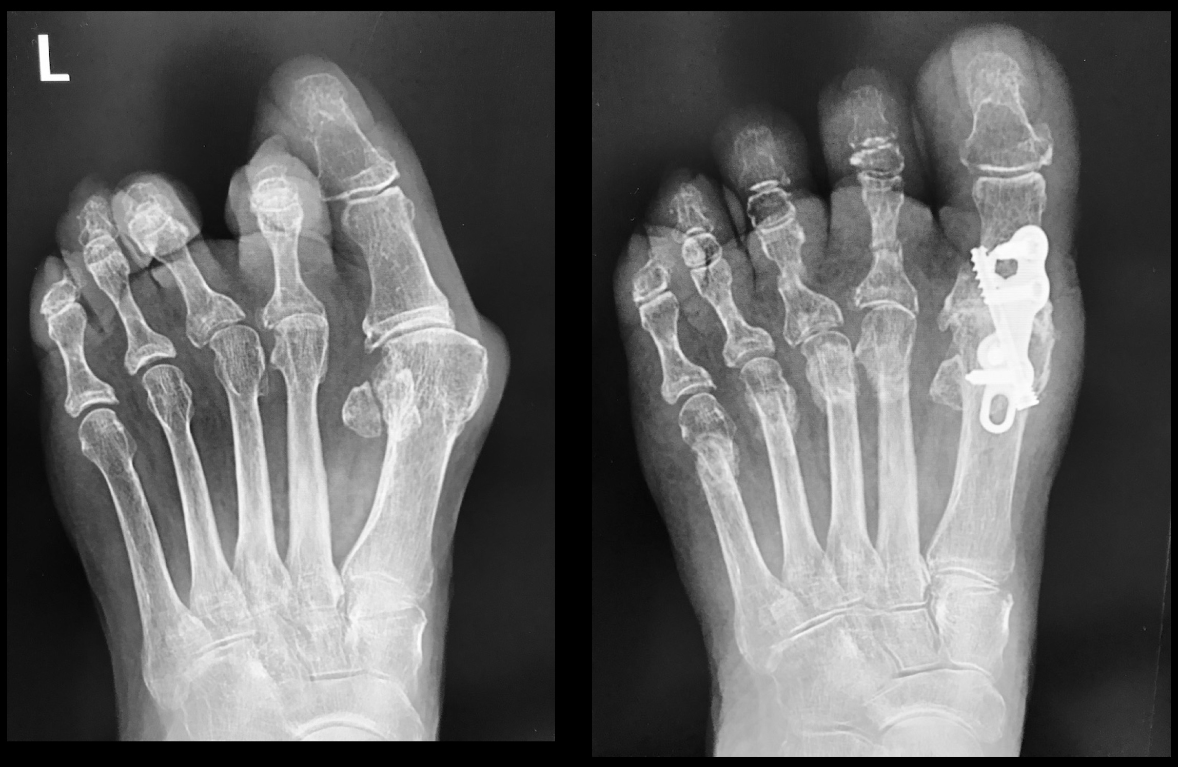 Big Toe Fusion surgery performed by Mr Redfern. The x-ray on the left was before surgery. The patient complained of painful hallux rigidus (arthritis), hallux valgus (bunion) and painful lesser toe deformities (2nd and 3rd toes) with metatarsalgia. The problems were solved with fusion of the big toe joint combined with state-of-the-art minimally invasive surgery to correct the lesser toes. Final x-ray on the right