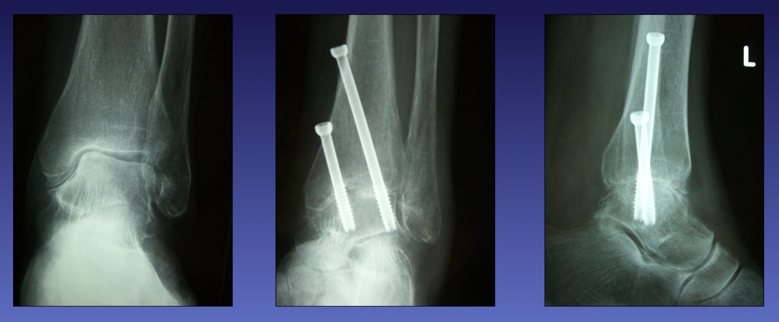 X-rays before and after arthroscopic ankle fusion (arthrodesis) surgery by Mr Redfern for a patient with painful ankle arthritis