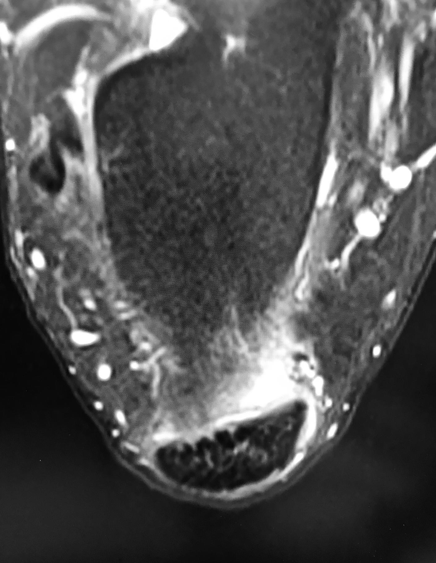 Copy of Axial MRI
