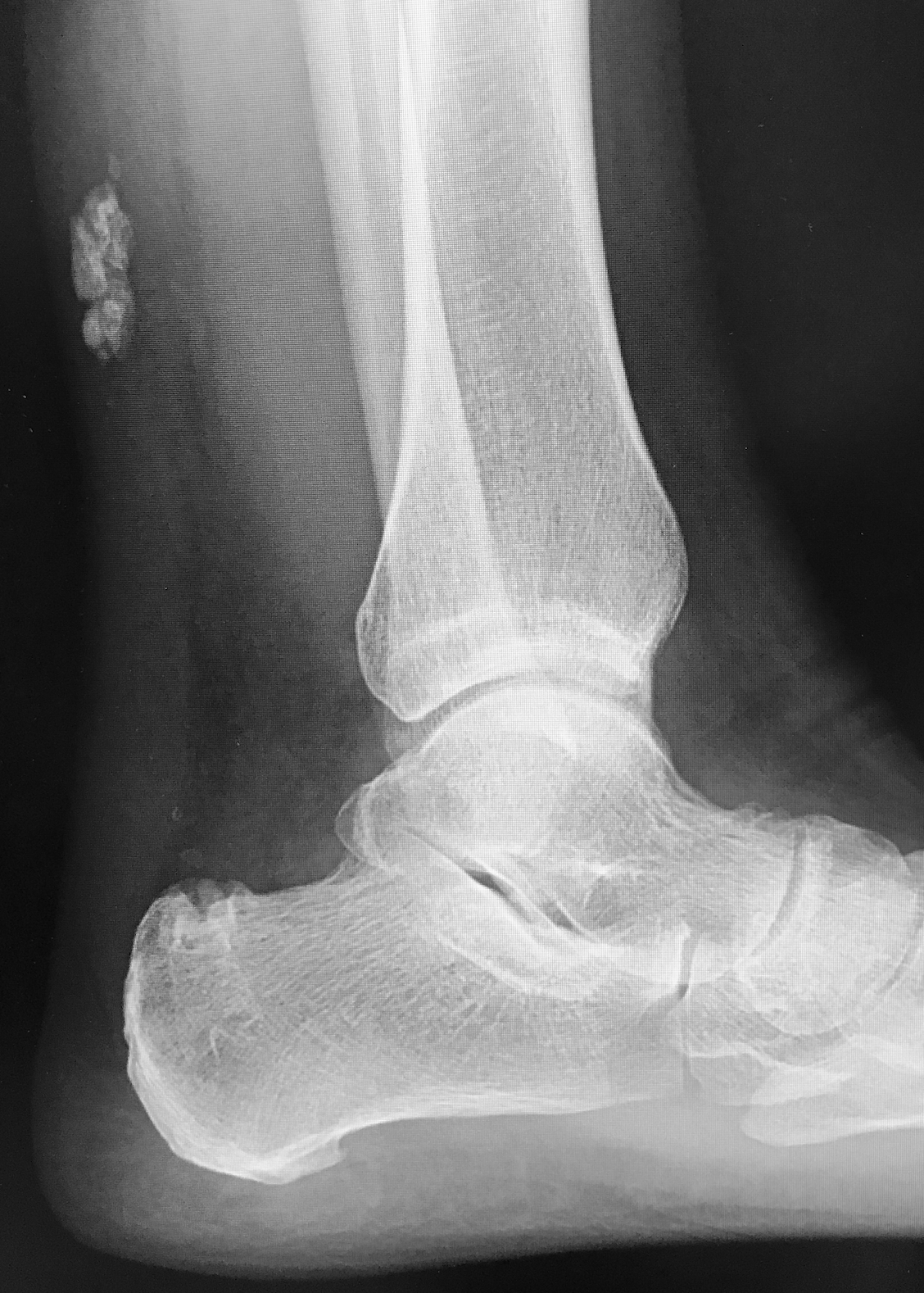 Copy of Xray showing calcification of the Achilles