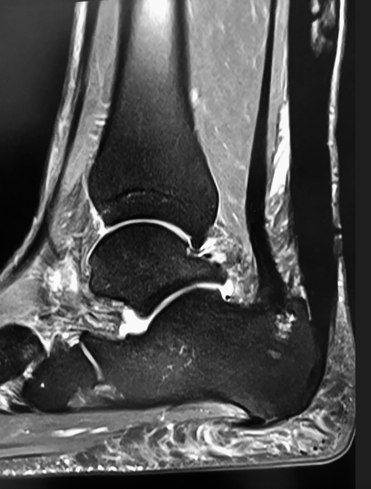 Copy of MRI of Achilles after FHL Transfer