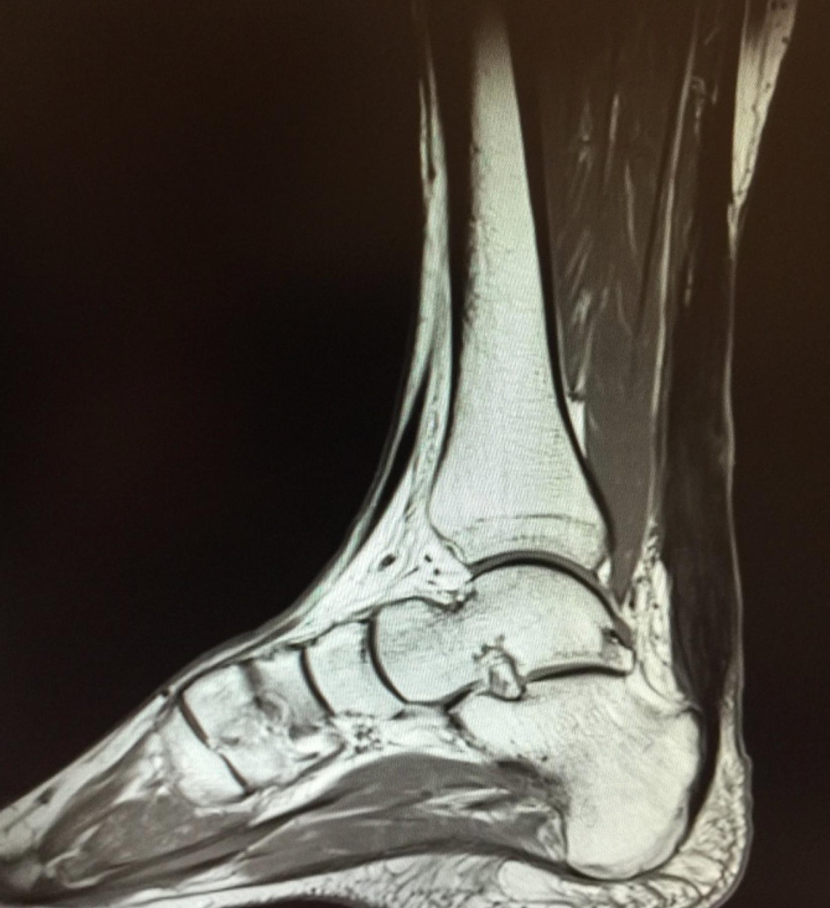 Copy of MRI showing Achilles Tendinopathy