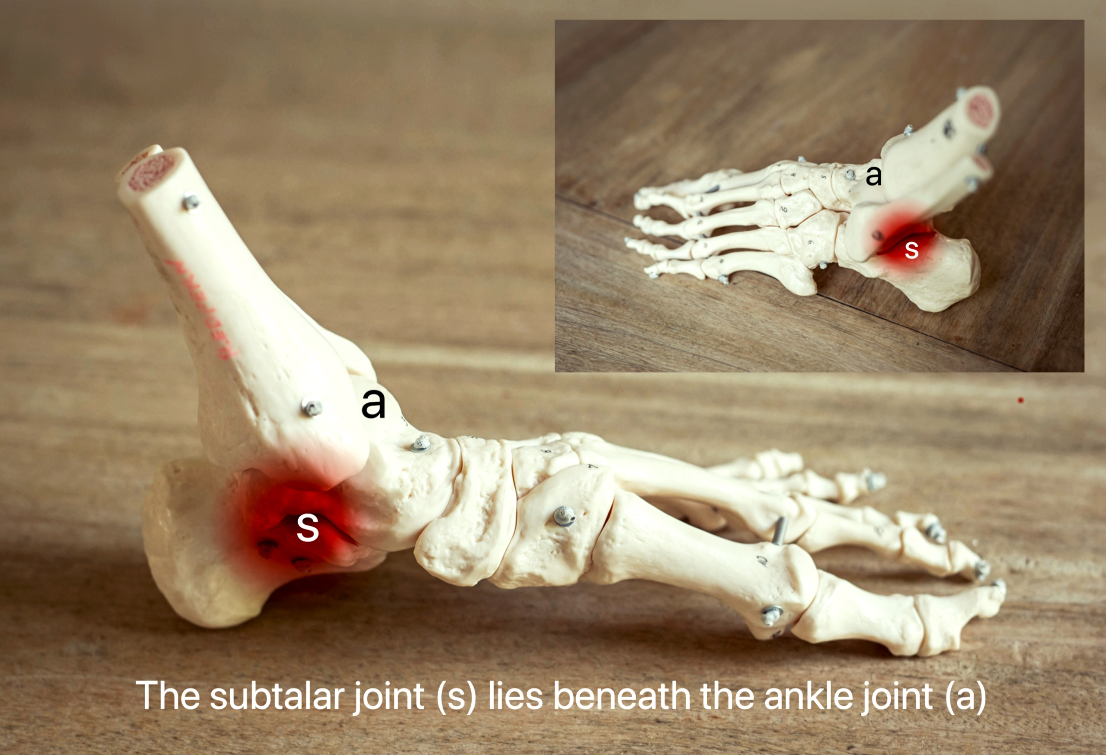 The subtalar joint - This joint lies beneath the ankle joint and allows side to side movement of the heel bone. Pain from this joint is often worst when walking over uneven ground.