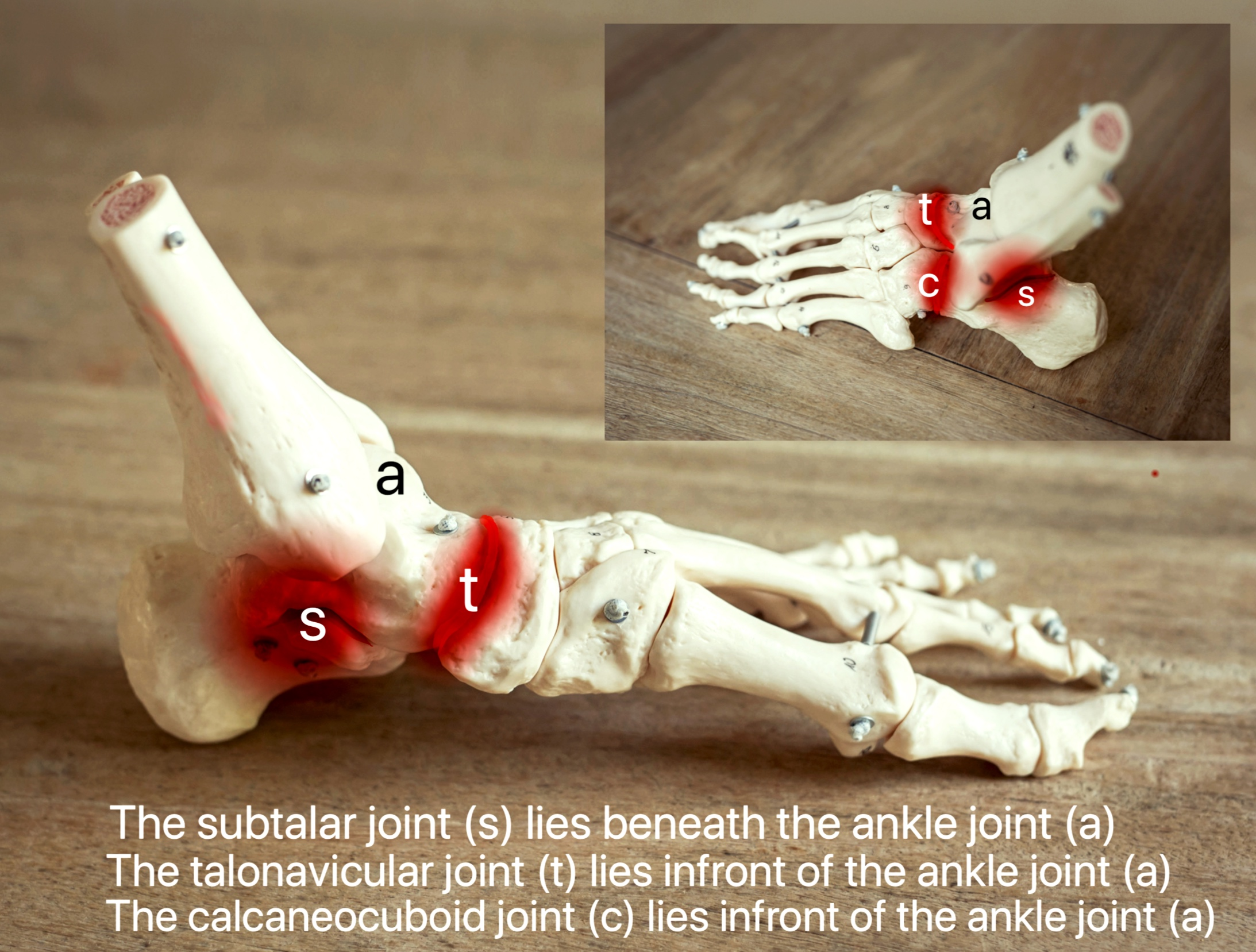 The Triple Joint Complex - The triple joint complex allows flexibility of the hind foot and also contributes about 1/3rd of up and down movement at the ankle. There are 3 joints that make up the 'triple joint complex':1. Subtalar joint (s)2. Talonavicular joint (t)3. Calcaneocuboid joint (c)