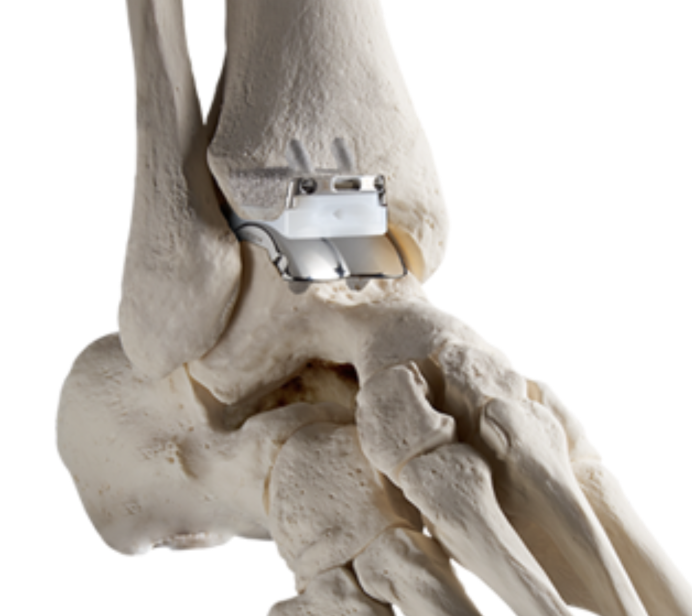 Infinity Ankle - Infinity ankle replacement shown in a model skeleton. The implants replace both tibia and talus articular surfaces and have a high density polyethylene articulating spacer between the two metal surfaces.
