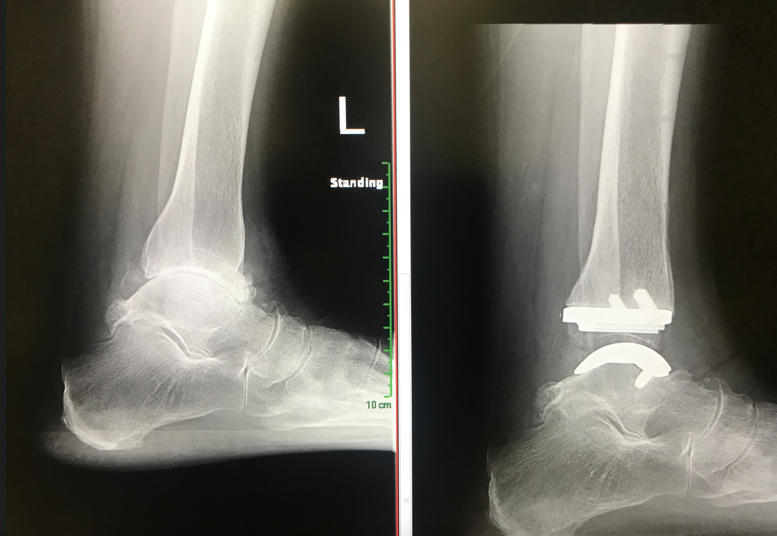 Case 1: Before and after x-rays