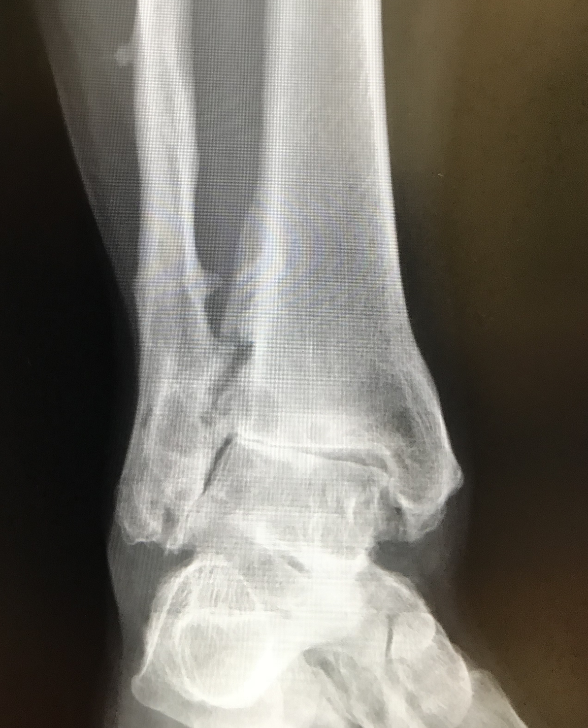 Case 2: x-ray before surgery