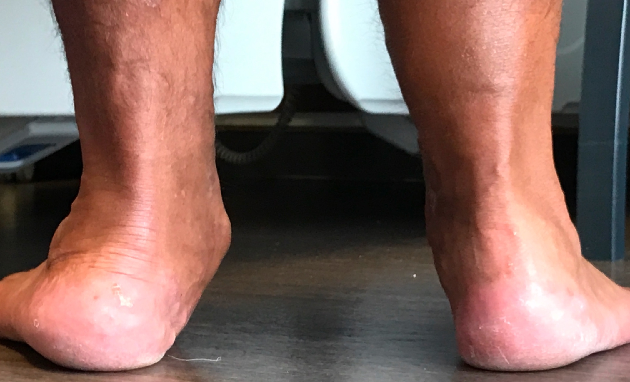 Adult Aquired Flatfoot Deformity - This photograph shows a severe flatfoot deformity on the left. This required complex reconstructive surgery to both the foot and ankle performed by Mr Redfern.