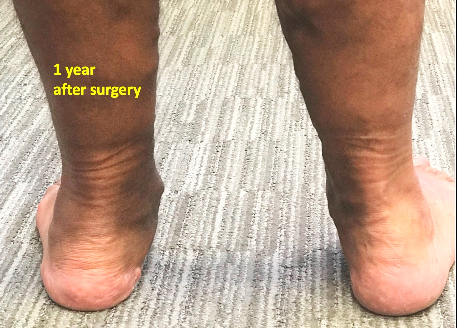 Reconstructive Surgery - This is a photograph of the same patient after reconstructive surgery by Mr Redfern