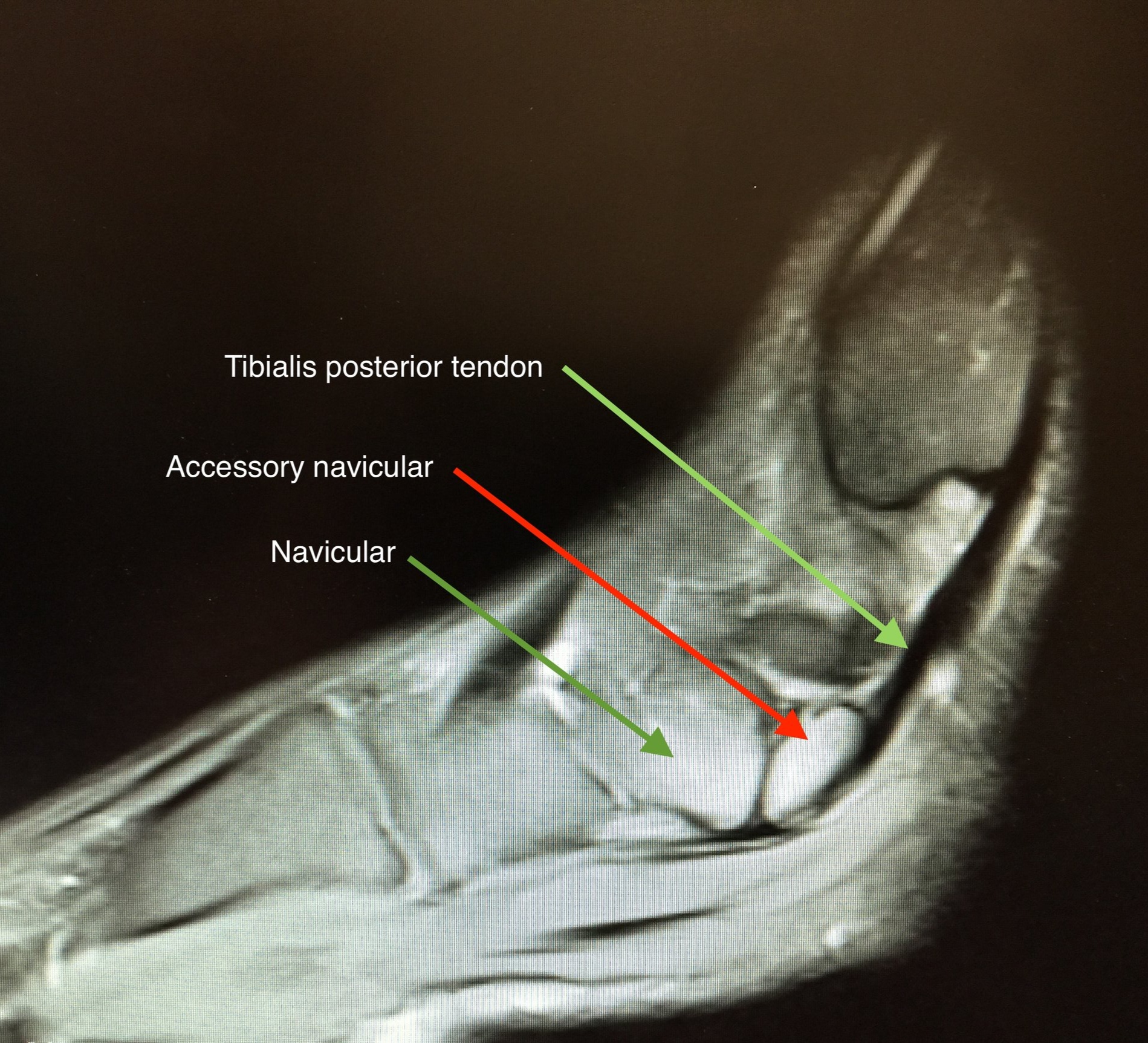 Accessory Navicular - Sometimes there is an extra piece of bone on the inside of the foot where the posterior tibialis tendon attaches to the navicular. This is quite common (8% of population). Although most patients do have any symptoms, some may experience pain in the area and may require specialist imaging. In itself it does not cause a flat foot. Surgery may sometimes be required if symptoms persist and generally involves removal or re-attachment of the extra bone.